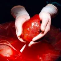 International Organ Donation Conference Ryn