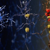 Advancing Alzheimer's Research: Characterisation, Diagnosis & Treatment