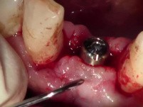 Paracrestal Incision - Uncovery Of Lower Anterior Implant