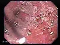 Barrett's Esophagus of long segment (5 of 24)