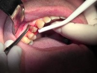 Flap Reflection & Pouch - Extraction #5 with Socket Bone Grafting - d-PTFE