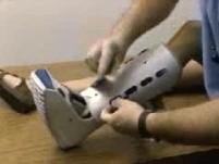 Lower Limb Immobilization