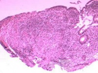 Multiple Rectal Ulcers (27 of 110)