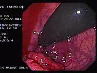 Rectal Cancer That Emerges In The Pectin Line (2 of 3)