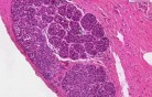 Lobular carcinoma in situ - Histopathology - Breast