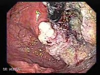 Esophageal Squamous Cell Carcinoma (4 of 5)