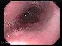 Barrett Esophagus - endoscopic view  (9 of 9)