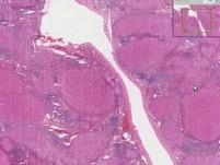 Liver - Cirrhosis 1