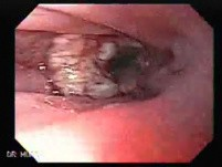 Esophageal Squamous Cell Carcinoma (5 of 5)