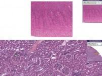 Kidney - Nephrocalcinosis