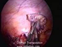 Laparoscopic Ovarian Transposition Before Radiotherapy