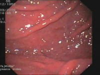 Stage III Of Esophageal Varices - Portal Gastropathy In Gastroscopy