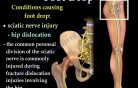 Peroneal Nerve Injury - Video Lecture