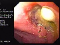 Partial Dehiscence of Suturing with Gastro-cutaneous Fistula (4 of 4)