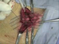 Indirect hernia repair