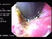 Hemorrhage due status post rubber band ligation of esophageal varices (5 of 25)