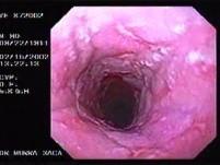 Barrett´s Esophagus -hyperplastic polyp -(3 of 4)