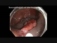 Cecum - Flat Lesion - EMR Steps: Injection-Resection-APC