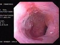 Barret´s Esophagus long segment (1 of 4)