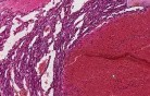 Hemangioma - Histopathology - Breast, soft tissue