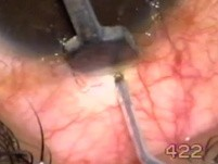 Transciliary filtration - bleeding
