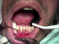 Threading Technique - Gingival Grafting #26-25-24