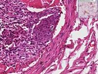 Lung - tumor Emboli