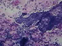 Cervicitis - Fibrin