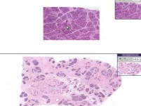 Breast - Hyperplasia Of Lactation