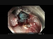 Colonoscopy Channel - EMR on a Flat Lesion on Antithrombotics