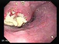 Small cell carcinoma of the lung that invades the upper and the middle third of the Esophagus (3 of 7)