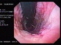 Banding of esophageal varices (2 of 17)