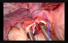 Difficult Thoracoscopic Bronchial Anastomosis (Right Upper Sleeve Lobectomy)