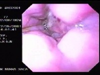 Hemorrhage due status post rubber band ligation of esophageal varices (2 of 25)
