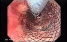Placement Of The Esophageal Stent - 4/12