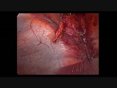 Umbilical hernia • MEDtube.net