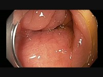 Colonoscopy - Rectal EMR Scar