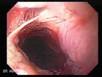 Perforation of a Esophageal Carcinoma after the procedure with hydrostatic balloon dilation (1 of 12)