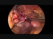 En Bloc Laparoscopic Sigmoidectomy, Left Annexectomy, Partial Small Bowel Plus Partial Urinary Bladder Resection For Advanced Sigmoid Tumor