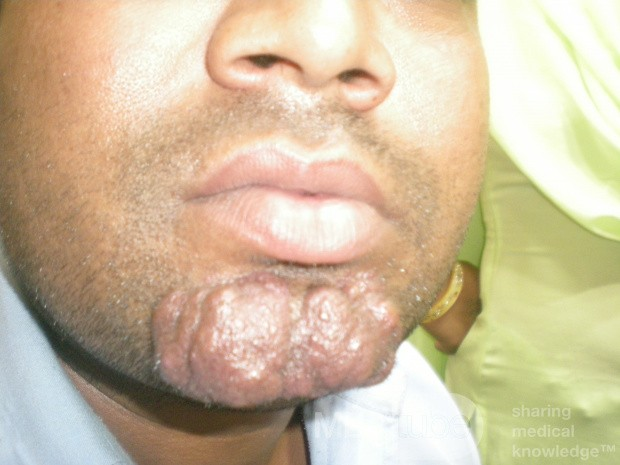 Multiple Sebaceous Cyst