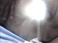 Recto-vaginal Fistula (3 of 3)