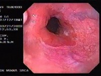 Banding of esophageal varices (1 of 17)