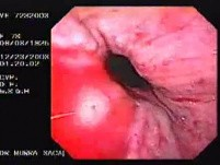Hemorrhage due status post rubber band ligation of esophageal varices (21 of 25)