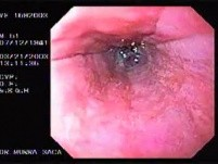 Banding of esophageal varices (9 of 17)