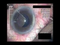 Cataract Surgery XI - Part 4