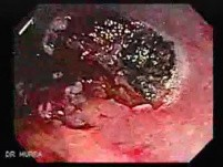 Endoscopic Resection of Giant Tubulo-Villous of the rectum (18 of 35)
