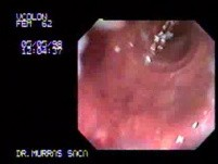 Rectal Carcinoma At The Second Valve