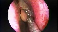 Nasal Polypectomy - Endoscopy