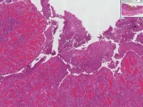 Small Intestine- Crohn Disease