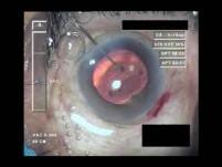 Cataract Surgery IV - Part 4
